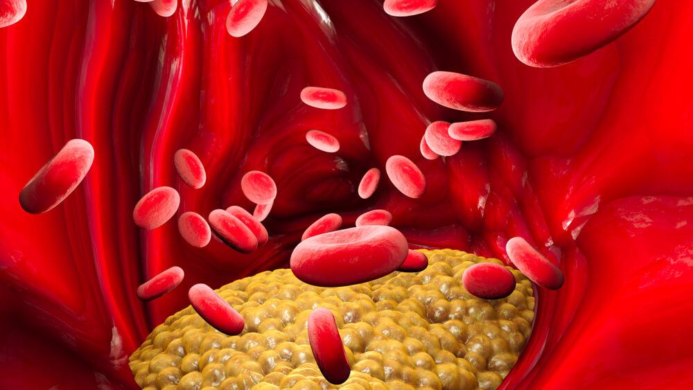 Entenda os valores, sintomas e riscos do triglicerídeos alto