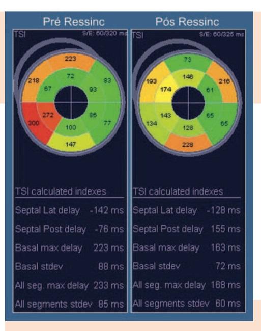 Ecocardiografia técnicas avançadas