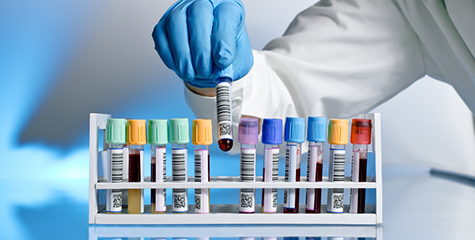 Médica dá 7 dicas para quem precisa fazer um exame de sangue