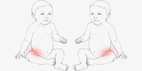 Bebês, quadris e cuidados