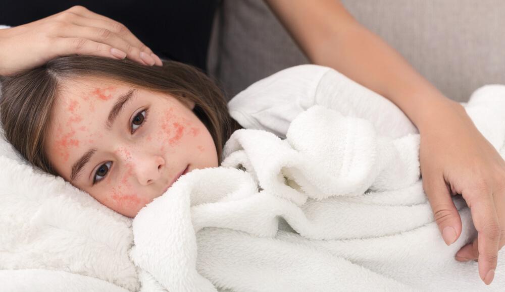 O sarampo é uma doença viral que pode ser muito perigosa. Saiba se pode matar, os sintomas, transmissão, vacina e prevenção no artigo.
