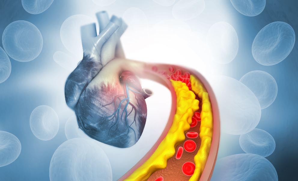 Colesterol alto: sintomas que indicam que algo não está certo