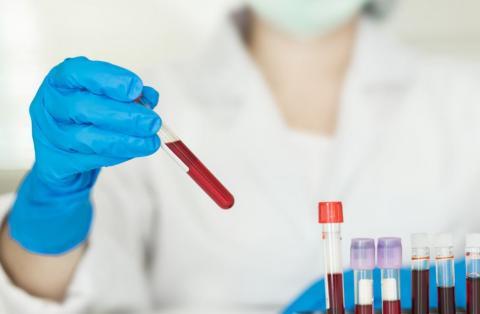Exame Beta HCG: entenda o resultado do exame de sangue que detecta gravidez
