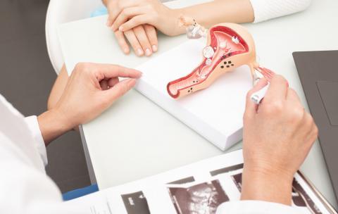 Histerossalpingografia (HSG): conheça o exame que avalia a cavidade uterina e as tubas - Salomão Zoppi