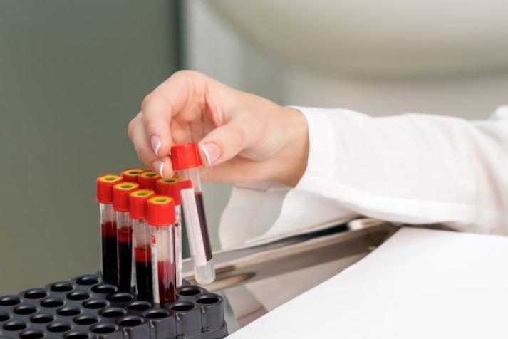 Exame de tireoide: entenda os níveis de TSH e T4 livre e o que fazer se estiverem desregulados
